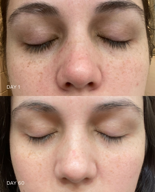 Vitamin C Serum Before and After